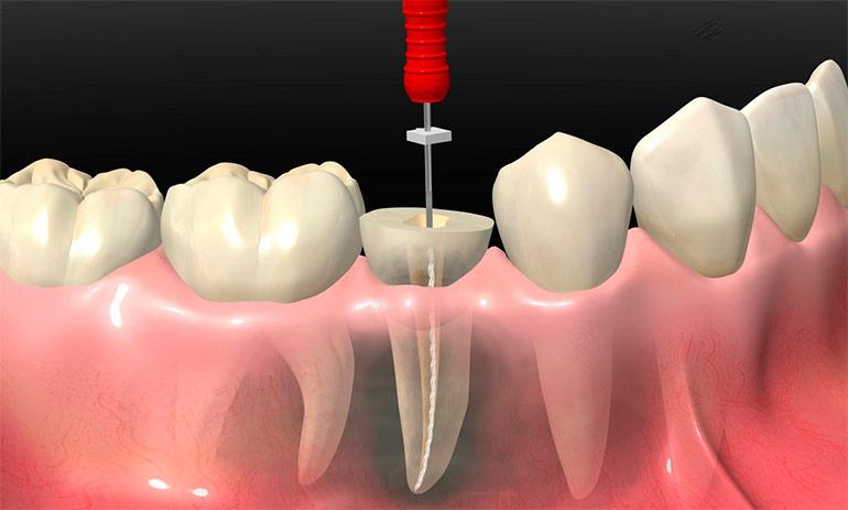 Реставрация зубов щелковская