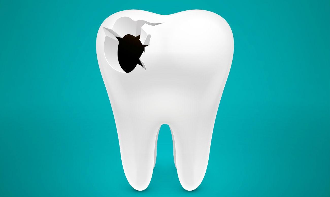кариес зубов картинки для необычный презент