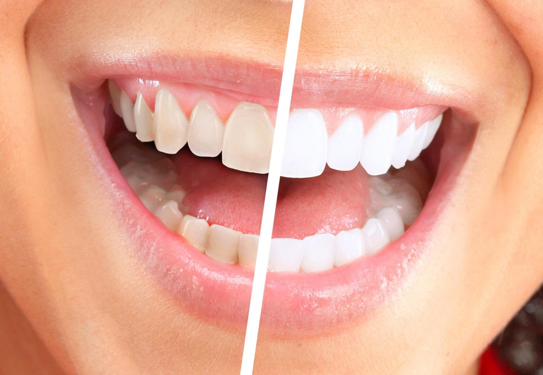 Безопасно ли отбеливание зубов рекомендации