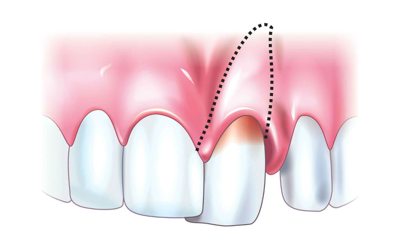Перфорация зуба не повод подымать панику